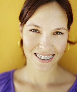 Adult Braces In Northern California