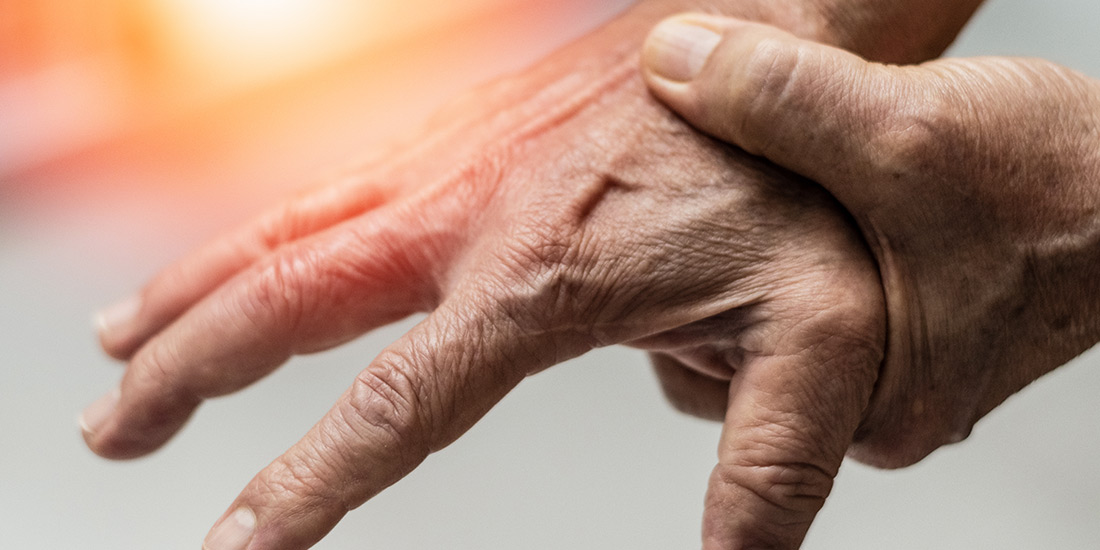 Dupuytren's contracture Treatment In Redding